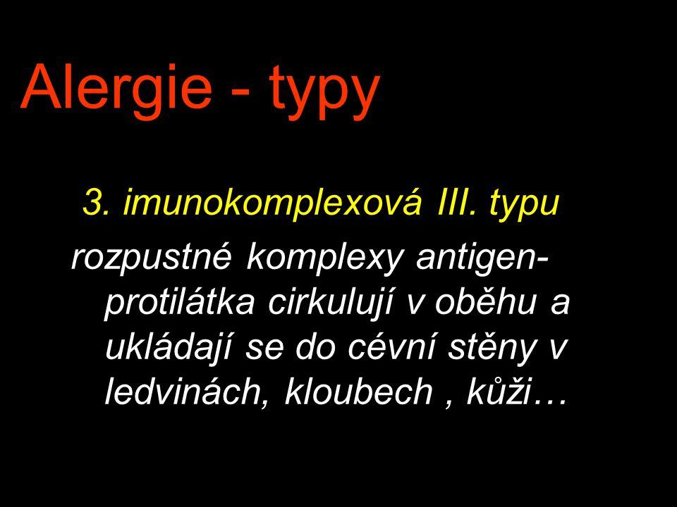 Alergie - typy 3. imunokomplexová III. typu