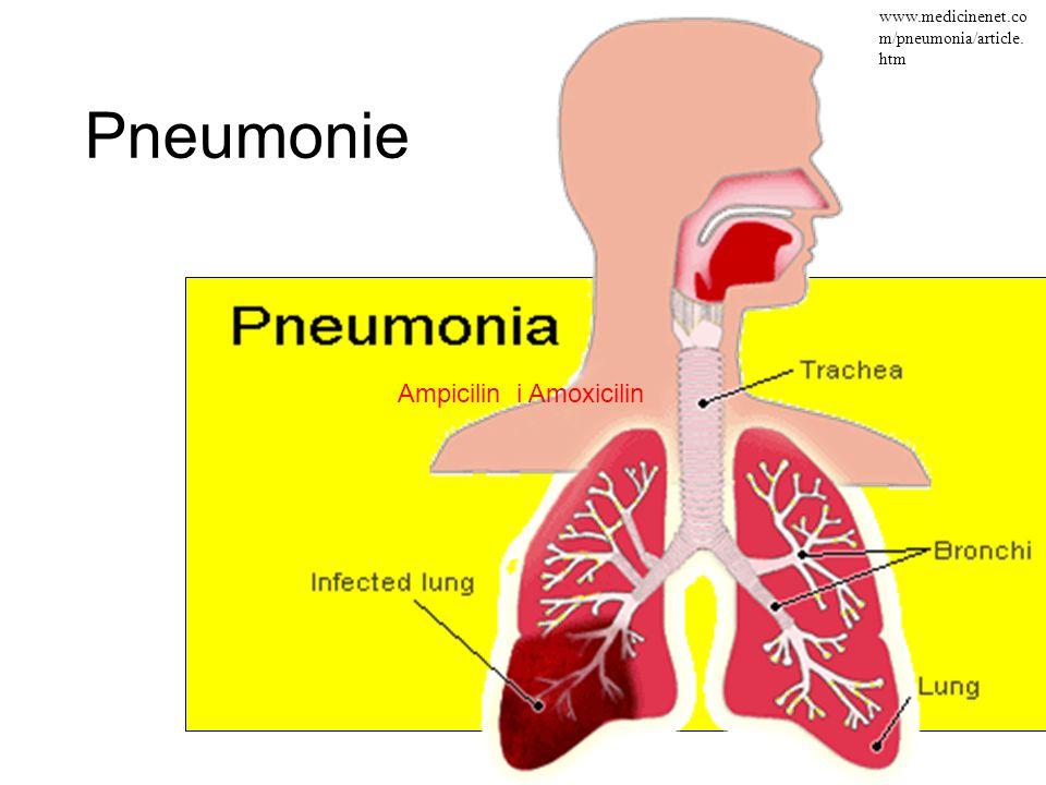 Pneumonie Ampicilin i Amoxicilin