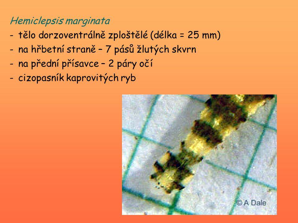 Hemiclepsis marginata