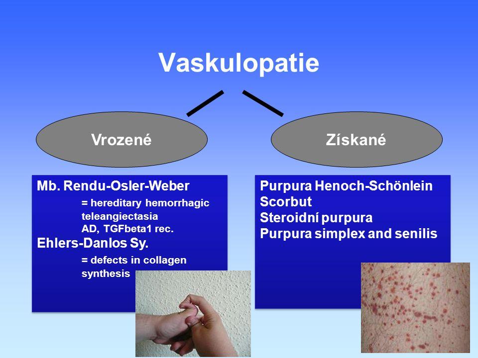 Vaskulopatie Vrozené Získané Mb. Rendu-Osler-Weber