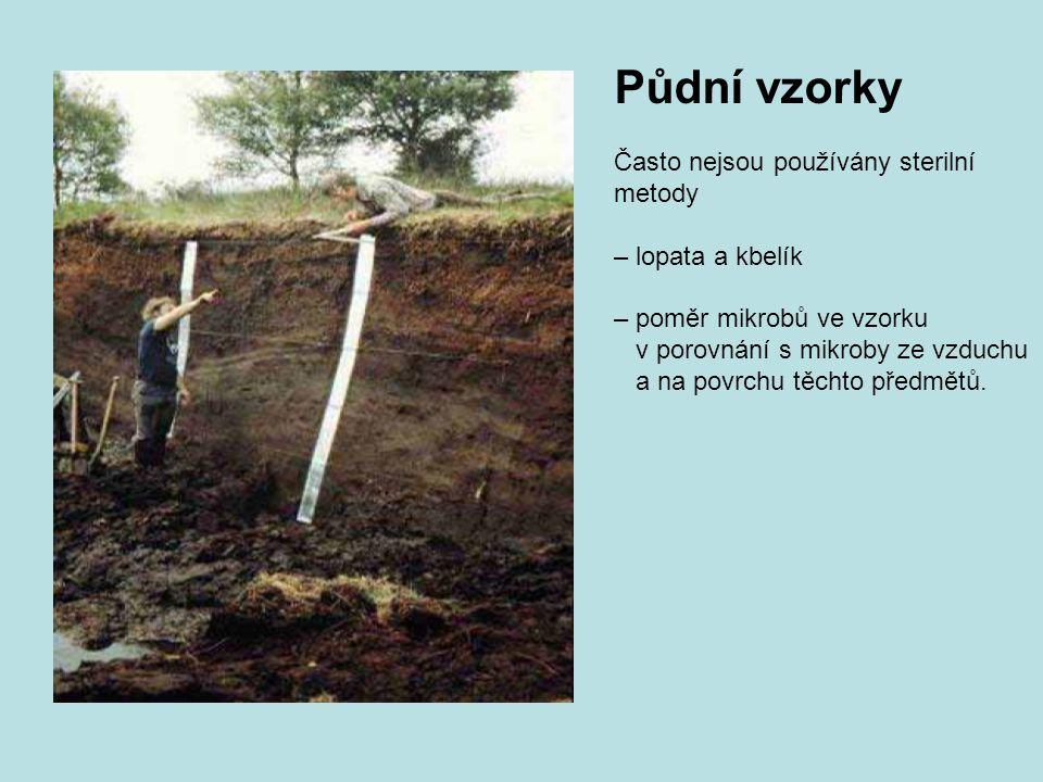 Půdní vzorky Často nejsou používány sterilní metody – lopata a kbelík