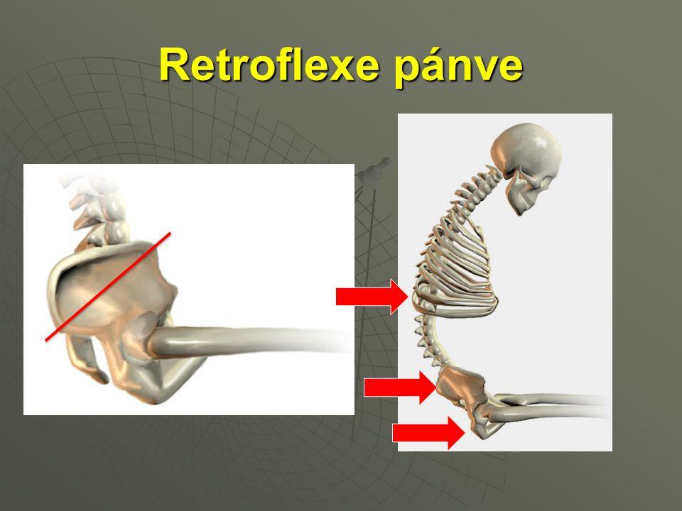 Retroflexe pánve