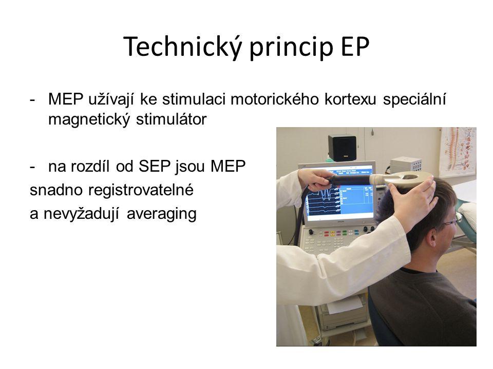 Technický princip EP MEP užívají ke stimulaci motorického kortexu speciální magnetický stimulátor. na rozdíl od SEP jsou MEP.