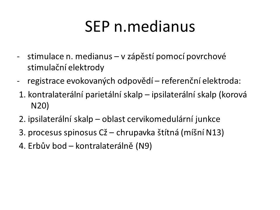 SEP n.medianus stimulace n. medianus – v zápěstí pomocí povrchové stimulační elektrody. registrace evokovaných odpovědí – referenční elektroda: