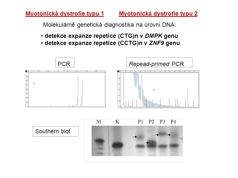 Myotonická dystrofie typu 1 Myotonická dystrofie typu 2