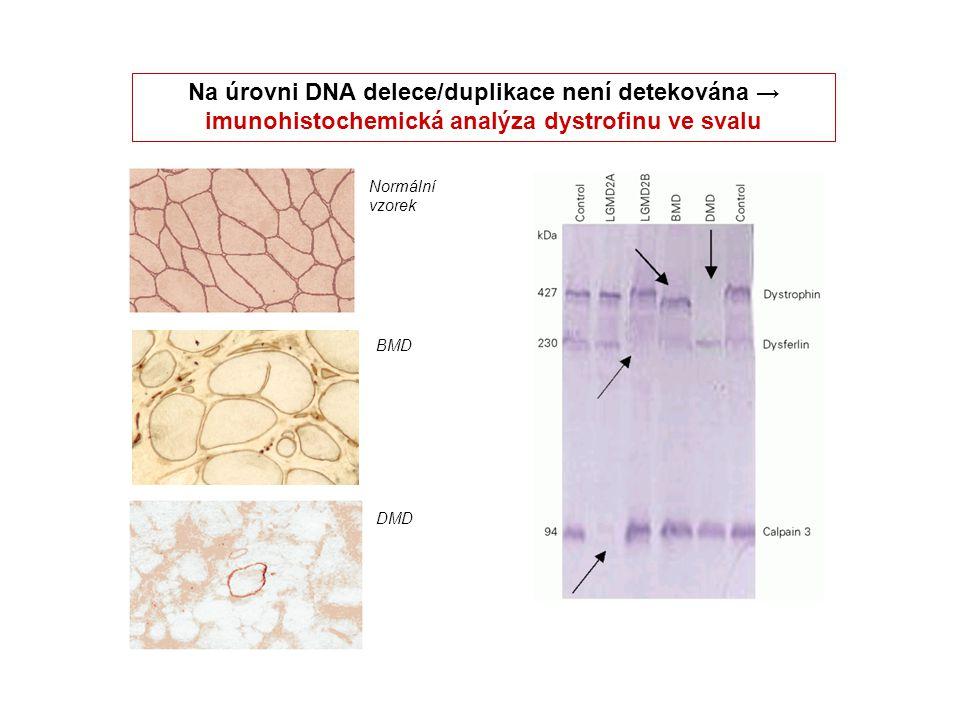 Na úrovni DNA delece/duplikace není detekována → imunohistochemická analýza dystrofinu ve svalu