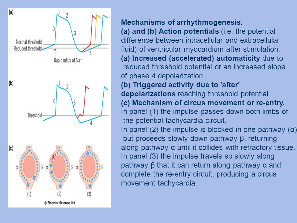 Mechanisms of arrhythmogenesis.