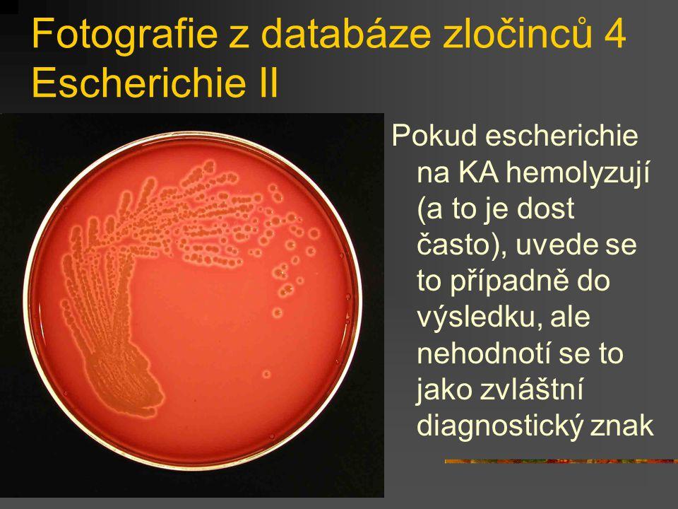 Fotografie z databáze zločinců 4 Escherichie II