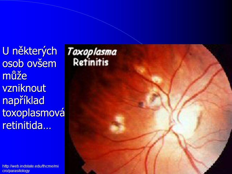 U některých osob ovšem může vzniknout například toxoplasmová retinitida…