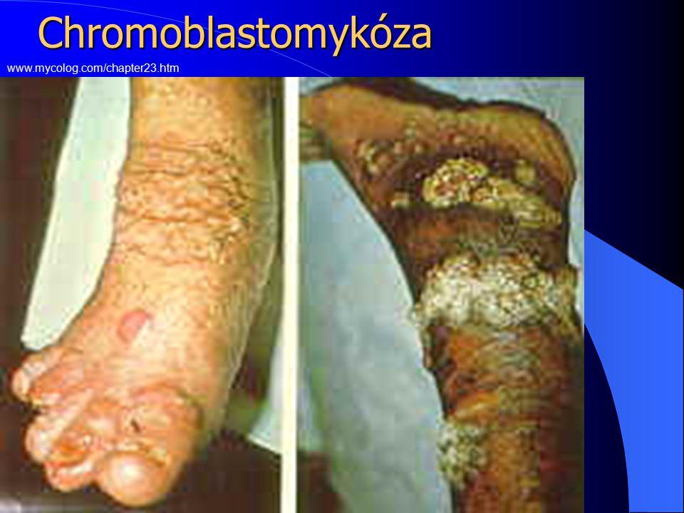 Chromoblastomykóza www.mycolog.com/chapter23.htm