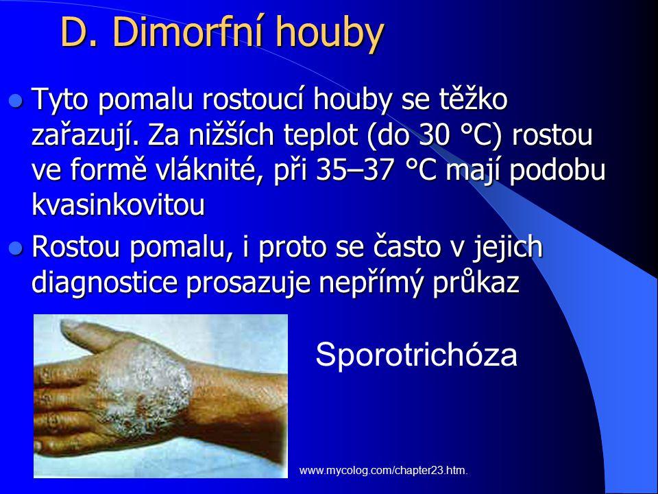 D. Dimorfní houby Sporotrichóza