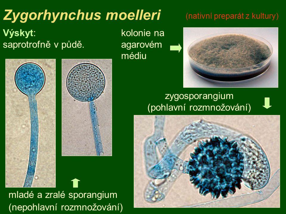 zygosporangium (pohlavní rozmnožování)