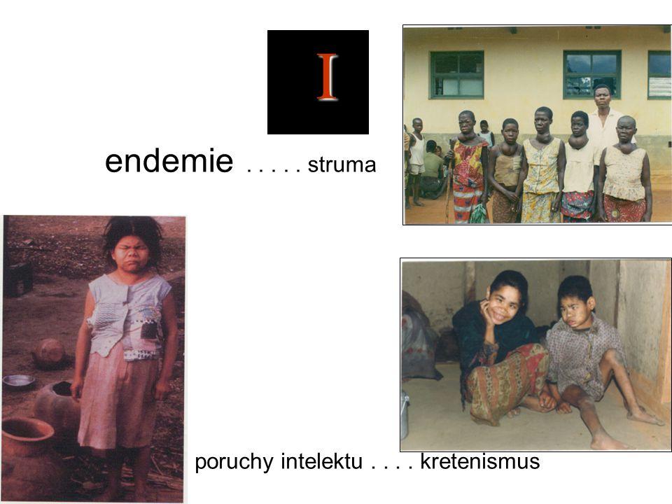 I endemie . . . . . struma poruchy intelektu . . . . kretenismus
