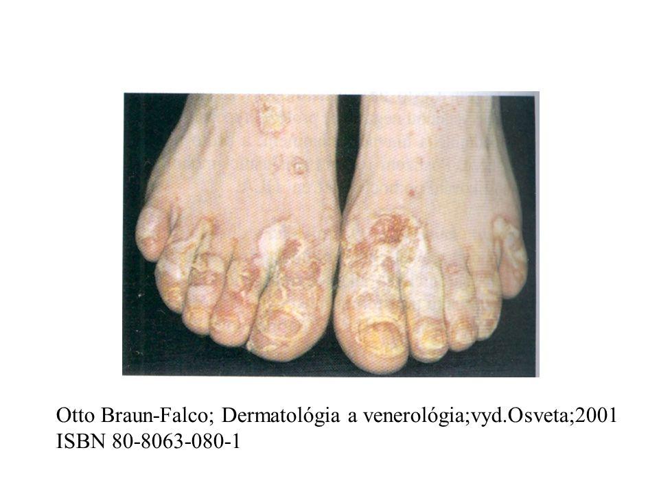 Otto Braun-Falco; Dermatológia a venerológia;vyd.Osveta;2001