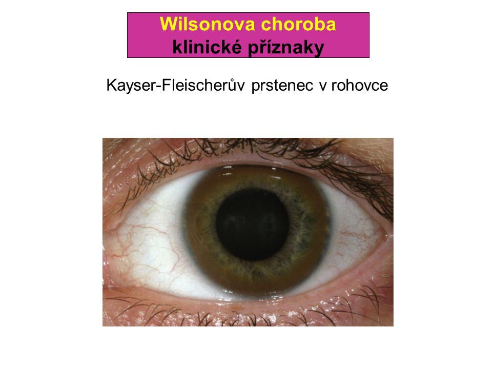 Wilsonova choroba klinické příznaky