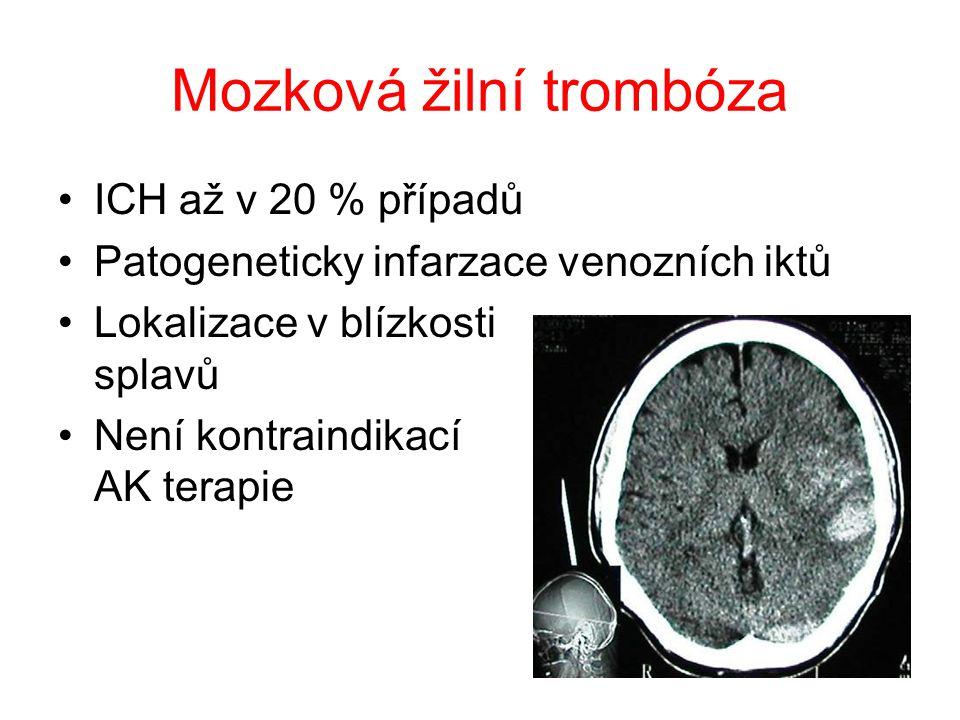 Mozková žilní trombóza