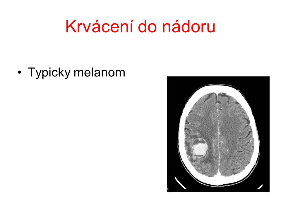 Krvácení do nádoru Typicky melanom
