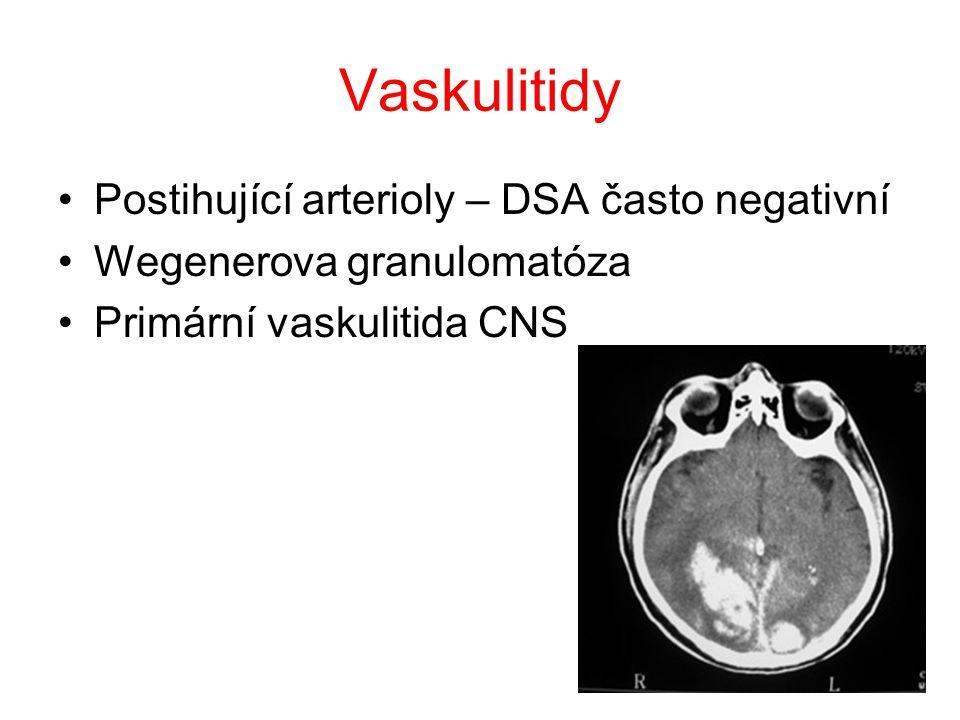 Vaskulitidy Postihující arterioly – DSA často negativní