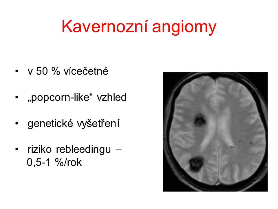 """Kavernozní angiomy v 50 % vícečetné """"popcorn-like vzhled"""