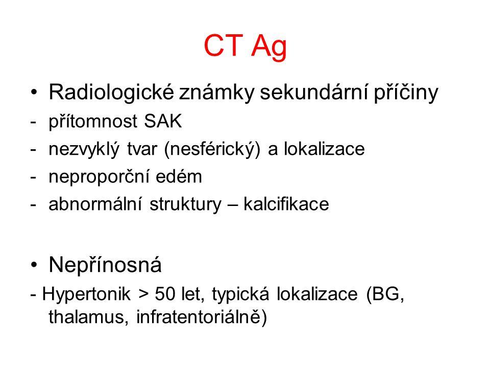 CT Ag Radiologické známky sekundární příčiny Nepřínosná přítomnost SAK