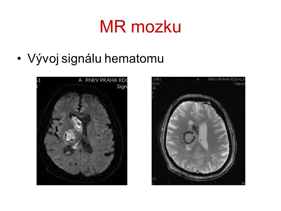 MR mozku Vývoj signálu hematomu