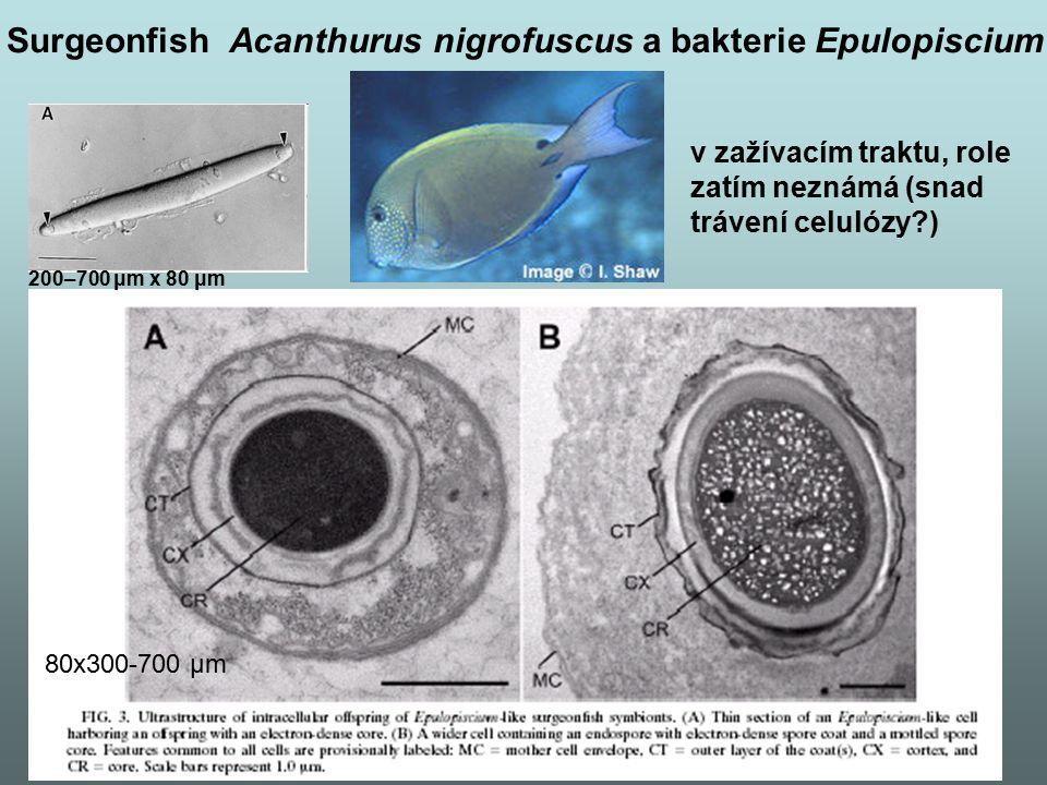 Surgeonfish Acanthurus nigrofuscus a bakterie Epulopiscium
