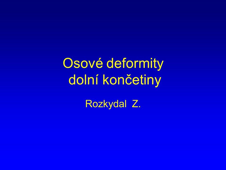 Osové deformity dolní končetiny