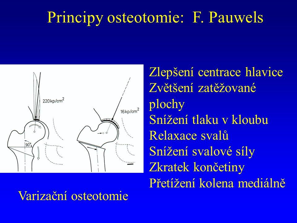 Principy osteotomie: F. Pauwels