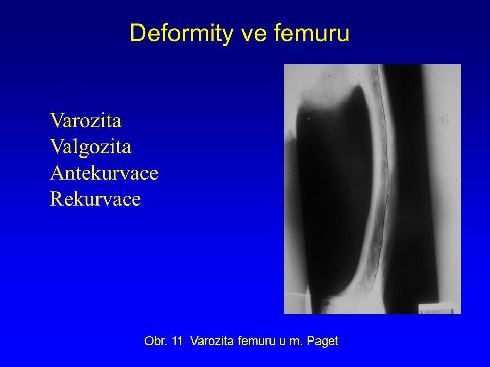 Deformity ve femuru Varozita Valgozita Antekurvace Rekurvace