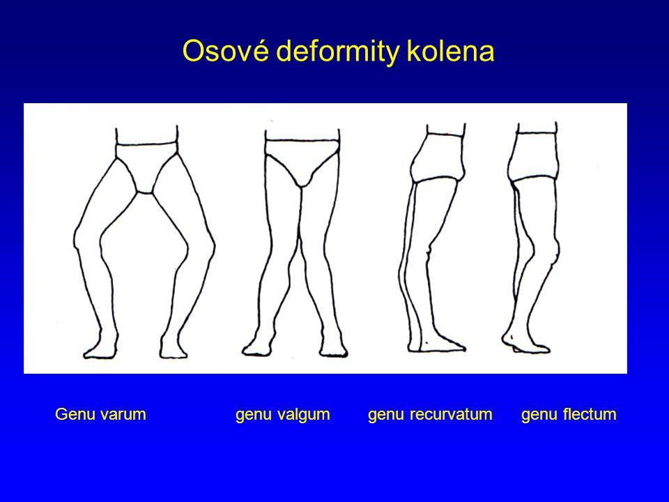 Osové deformity kolena