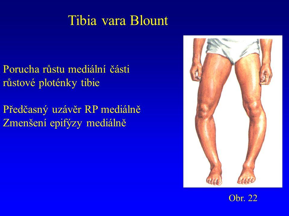 Tibia vara Blount Porucha růstu mediální části růstové ploténky tibie