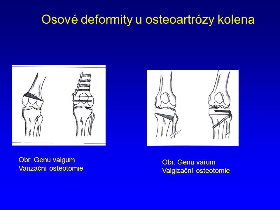 Osové deformity u osteoartrózy kolena