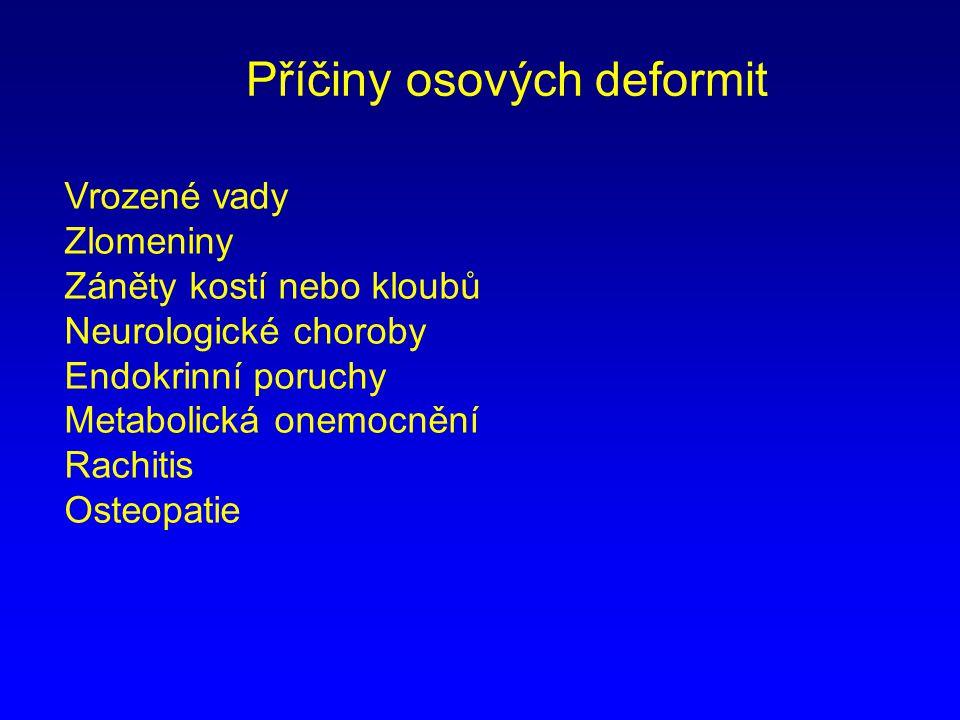 Příčiny osových deformit