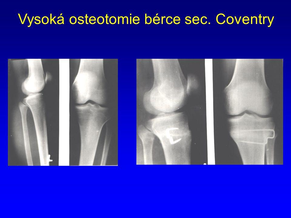 Vysoká osteotomie bérce sec. Coventry