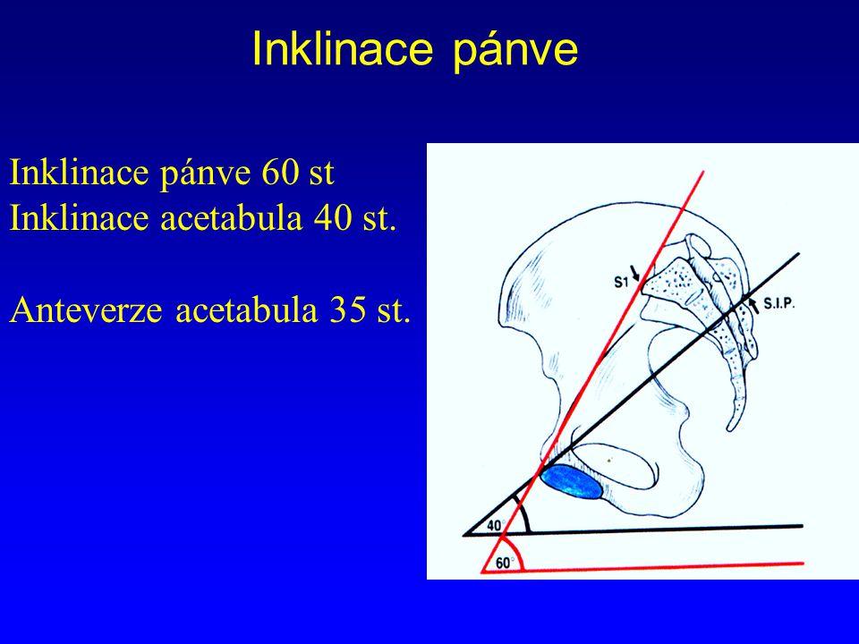 Inklinace pánve Inklinace pánve 60 st Inklinace acetabula 40 st.