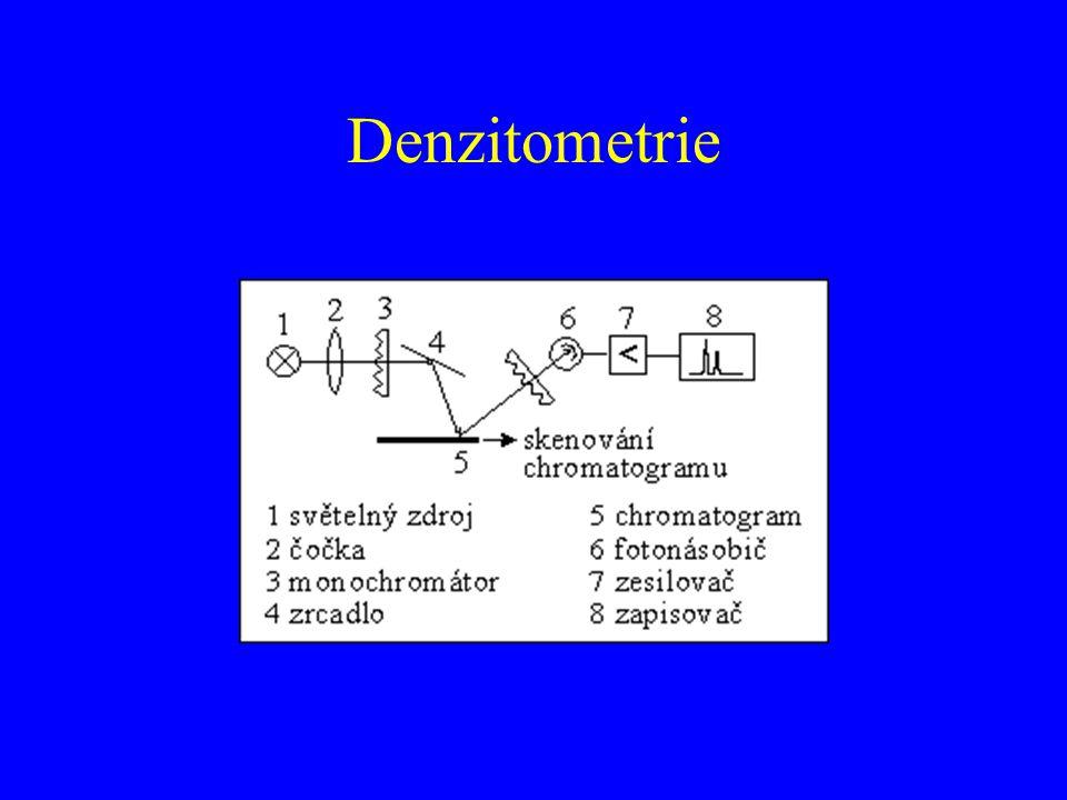 Denzitometrie