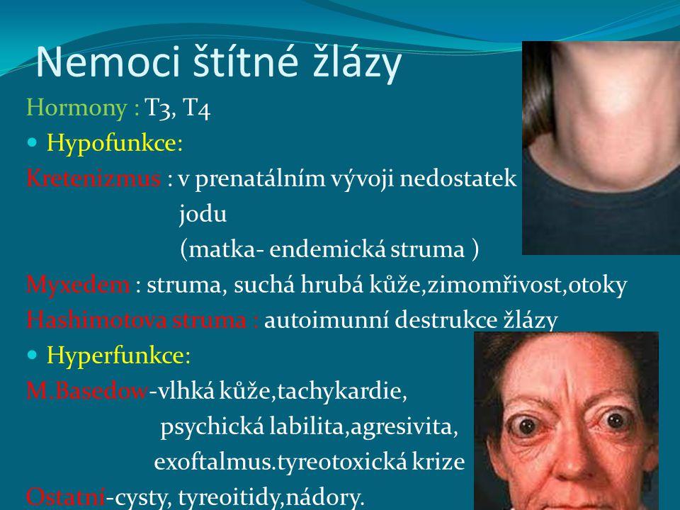 Nemoci štítné žlázy Hormony : T3, T4 Hypofunkce: