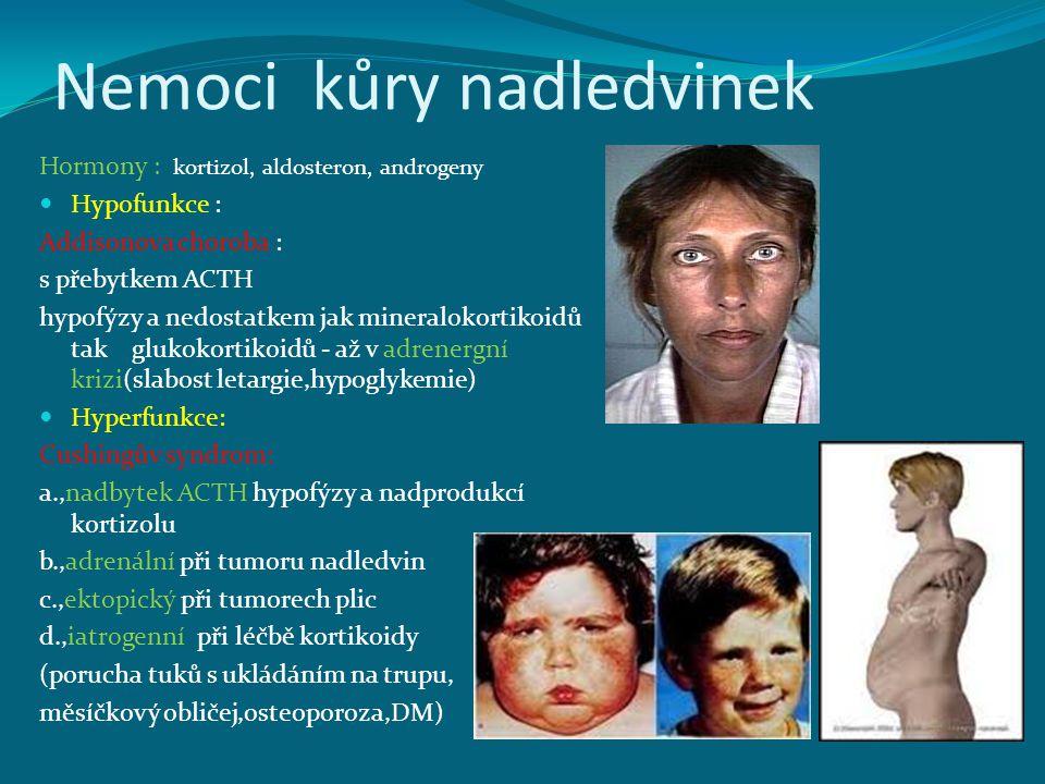 Nemoci kůry nadledvinek