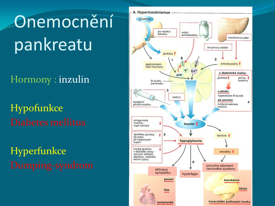 Onemocnění pankreatu Hormony : inzulin Hypofunkce Diabetes mellitus Hyperfunkce Dumping-syndrom