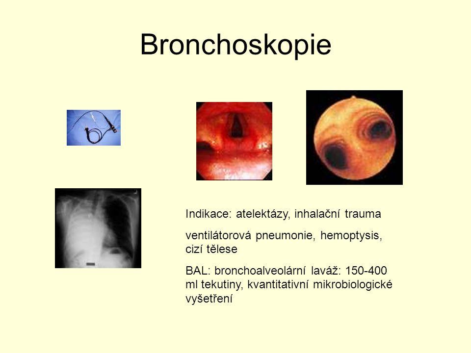 Bronchoskopie Indikace: atelektázy, inhalační trauma