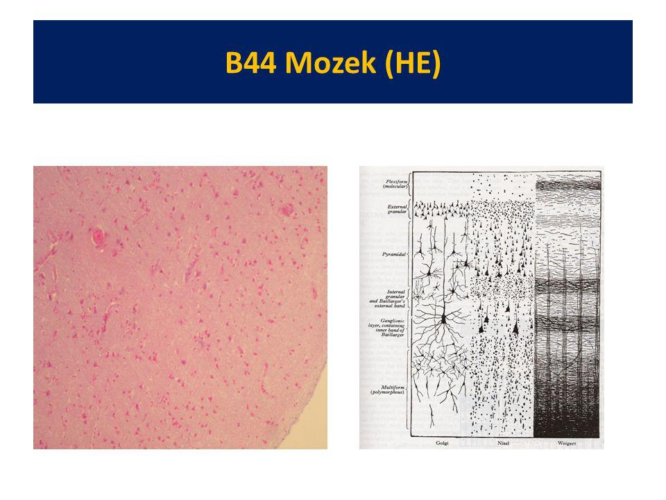 B44 Mozek (HE)