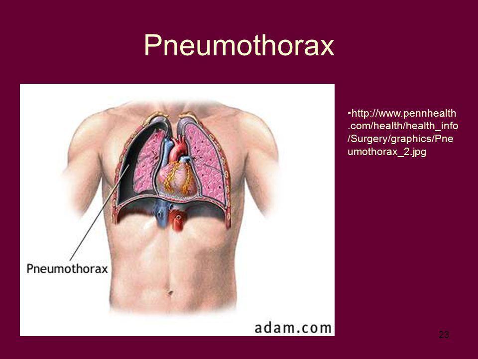 Pneumothorax http://www.pennhealth.com/health/health_info/Surgery/graphics/Pneumothorax_2.jpg