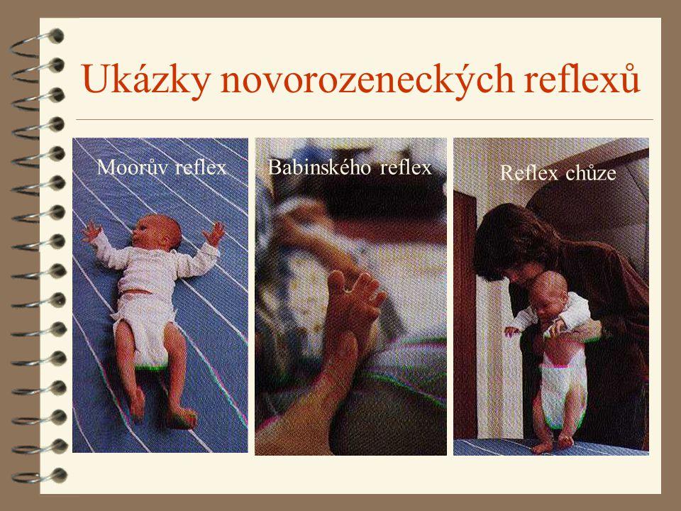 Ukázky novorozeneckých reflexů