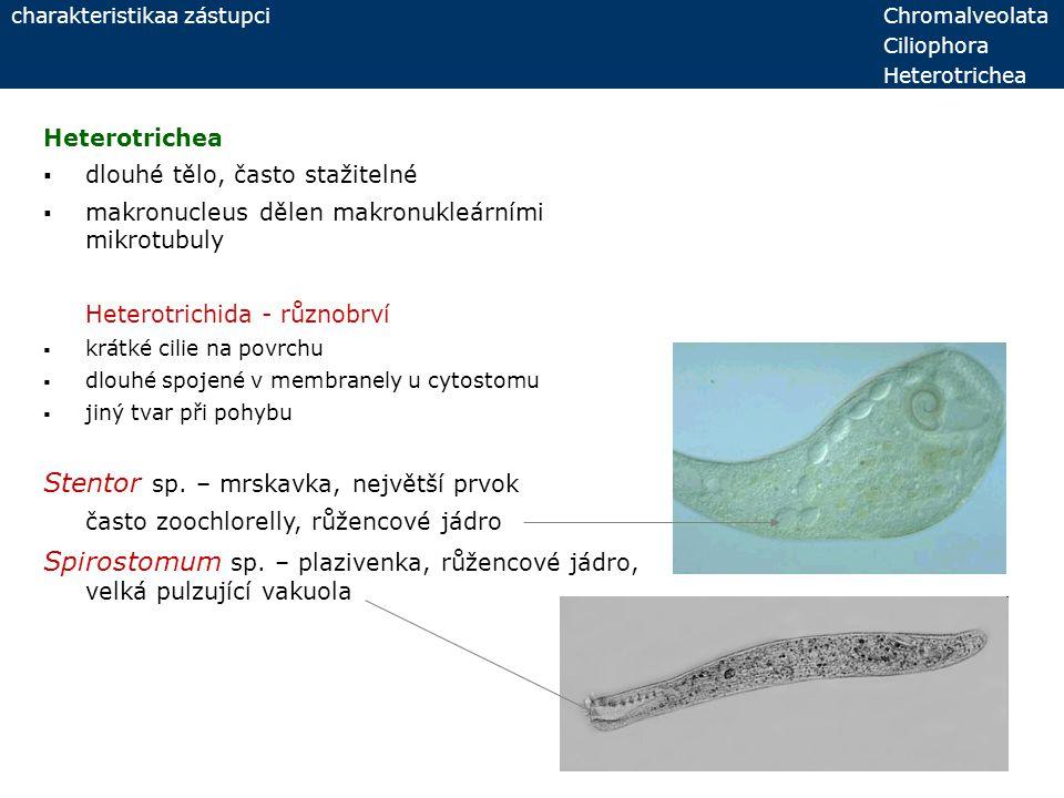 Stentor sp. – mrskavka, největší prvok