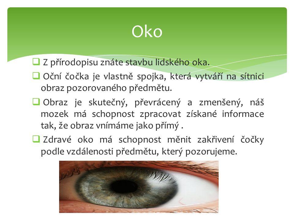 Oko Z přírodopisu znáte stavbu lidského oka.