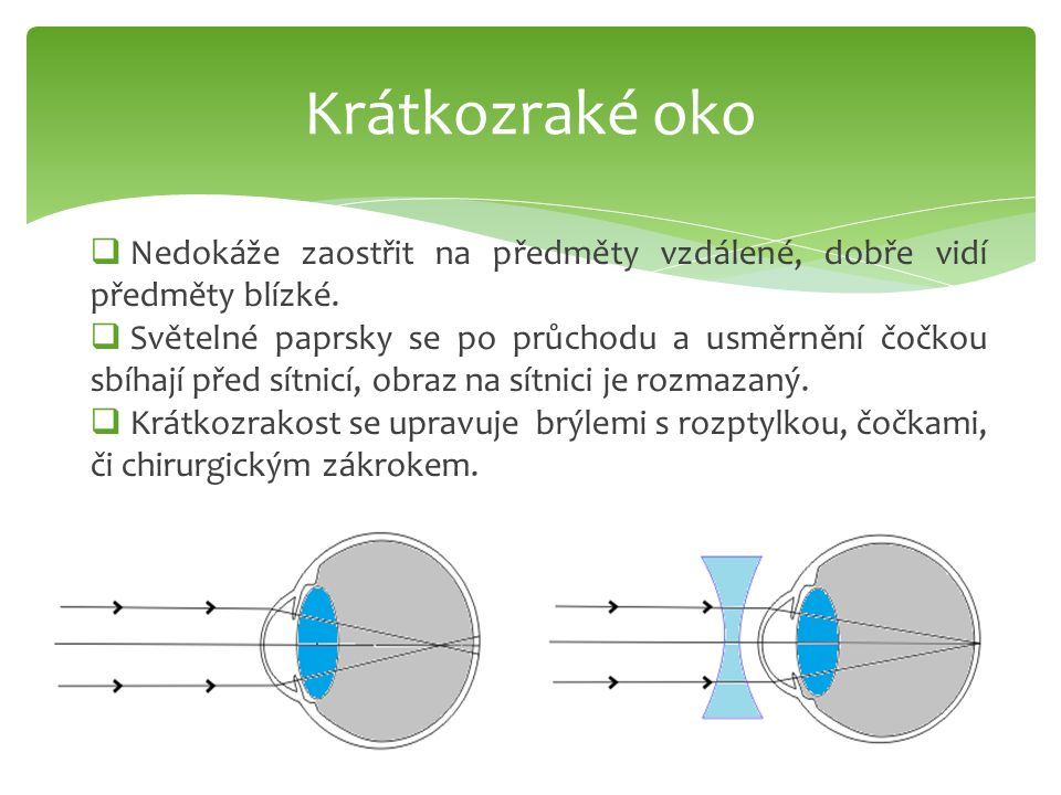 Krátkozraké oko Nedokáže zaostřit na předměty vzdálené, dobře vidí předměty blízké.