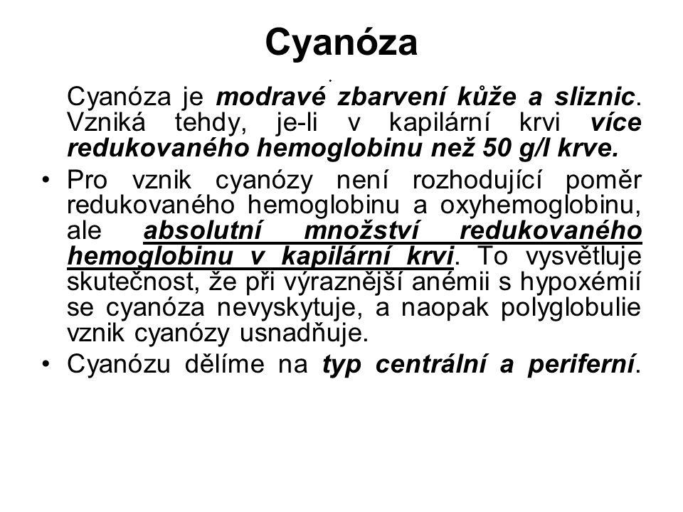 Cyanóza Cyanóza je modravé zbarvení kůže a sliznic. Vzniká tehdy, je-li v kapilární krvi více redukovaného hemoglobinu než 50 g/l krve.