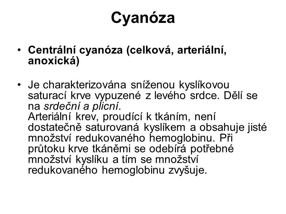 Cyanóza Centrální cyanóza (celková, arteriální, anoxická)