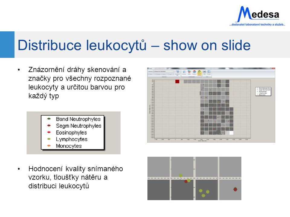 Distribuce leukocytů – show on slide