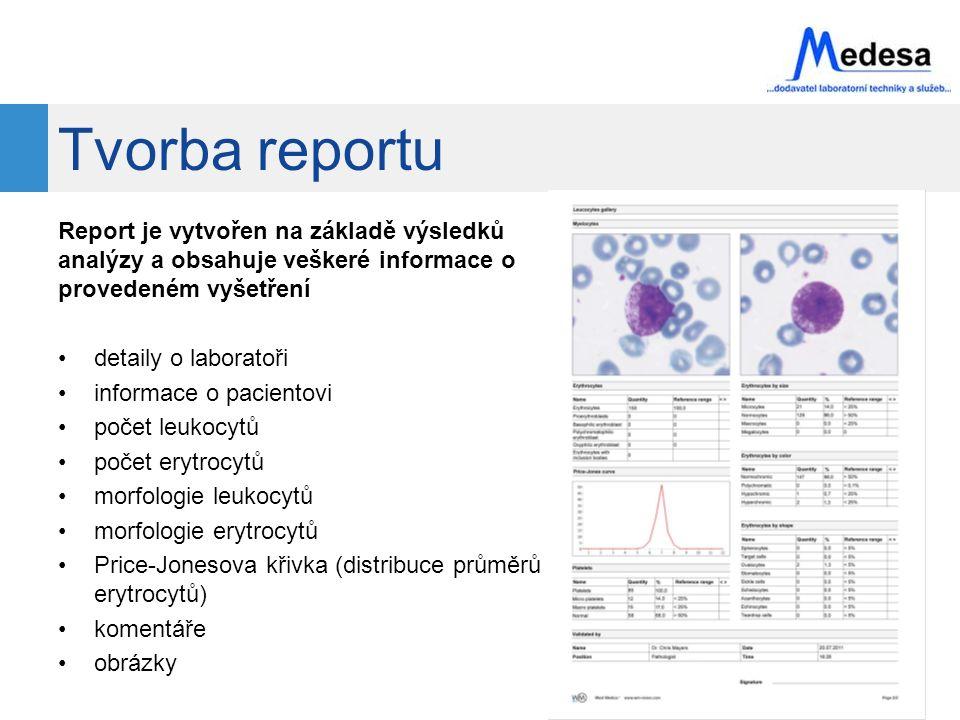 Tvorba reportu Report je vytvořen na základě výsledků analýzy a obsahuje veškeré informace o provedeném vyšetření.